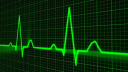 Herzfrequenz, Herzschlag, Herz-Signatur