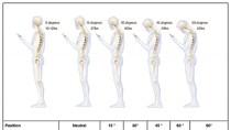 Smartphone-Nacken: Studie warnt vor Technik-Haltungssch�den
