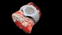 CERN-Technik bringt erste 3D-Farb-Röntgenbilder aus dem Menschen
