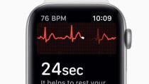 Rettung für Herz-Patientin: Apple Watch-EKG zeigt Gefäßverengung