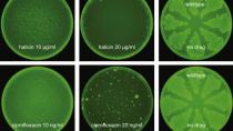 Forscher entdecken effektives Antibiotikum dank künstlicher Intelligenz