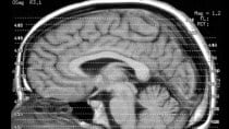 KI schafft Alzheimer-Erkennung zehn Jahre vor ersten Symptomen