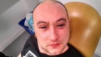 Kurioser Biohacking-Versuch: Augentropfen erm�glichen Nachtsicht